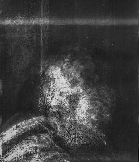 Ảnh X-quang từ bức